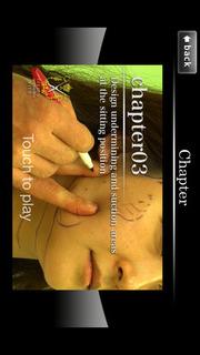 アジア人の為の腫れないフェイスネックリフト 手術映像のスクリーンショット_3