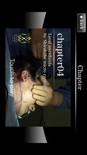 アジア人の為の腫れないフェイスネックリフト 手術映像のスクリーンショット_4