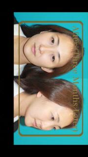 アジア人の為の腫れないフェイスネックリフト 手術映像のスクリーンショット_5